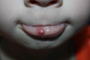невус нижней губы фото